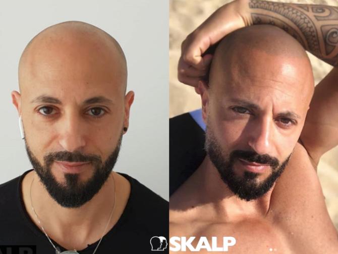 ¿Problemas con el pelo? ¿Sabías que se puede conseguir un aspecto juvenil sin trasplantes?